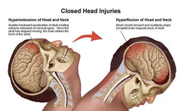 head-trauma-concussions